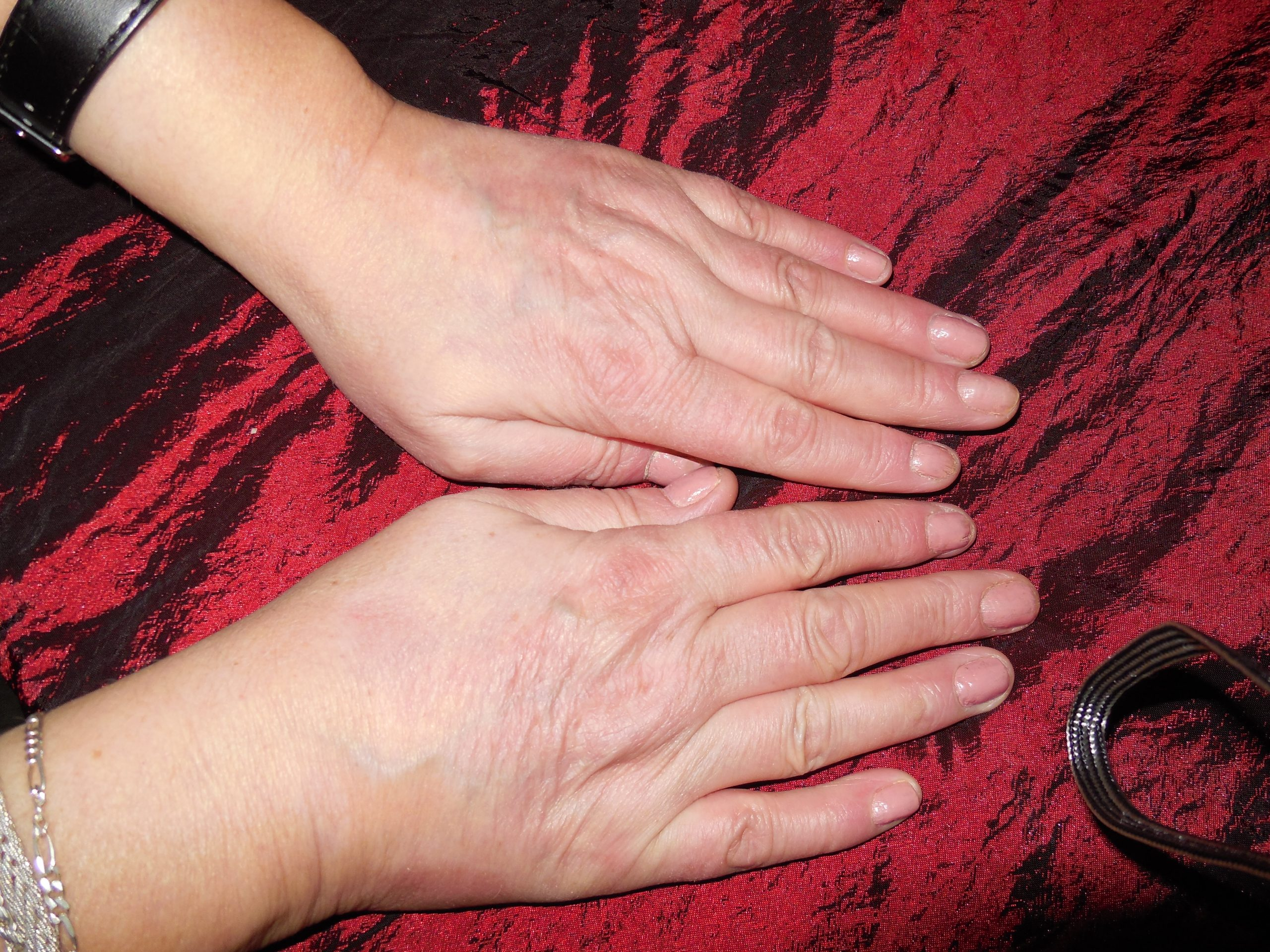 Woman's Healed hands after suffering from Psoriasis