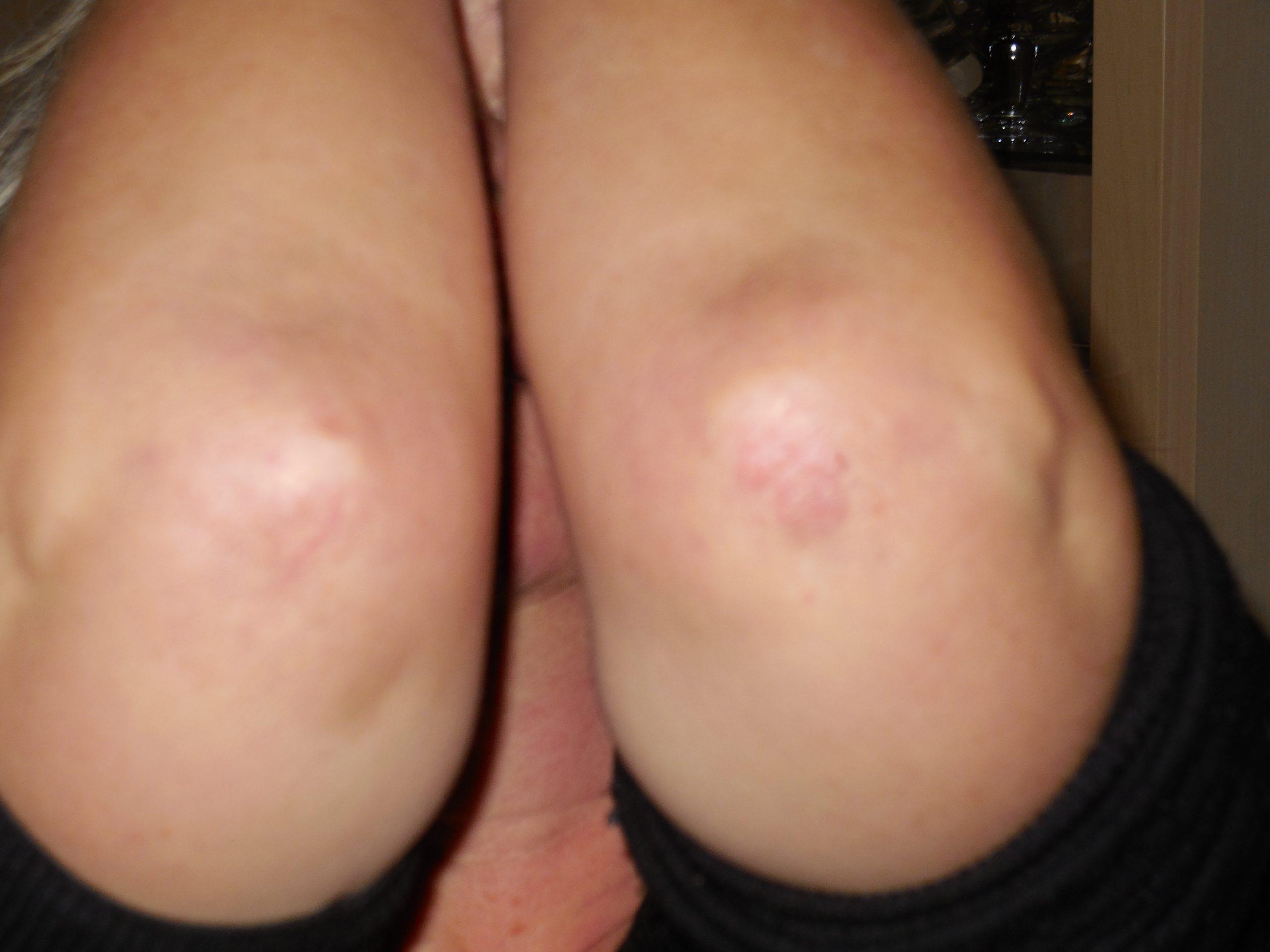 Woman's Skin after having Psoriasis