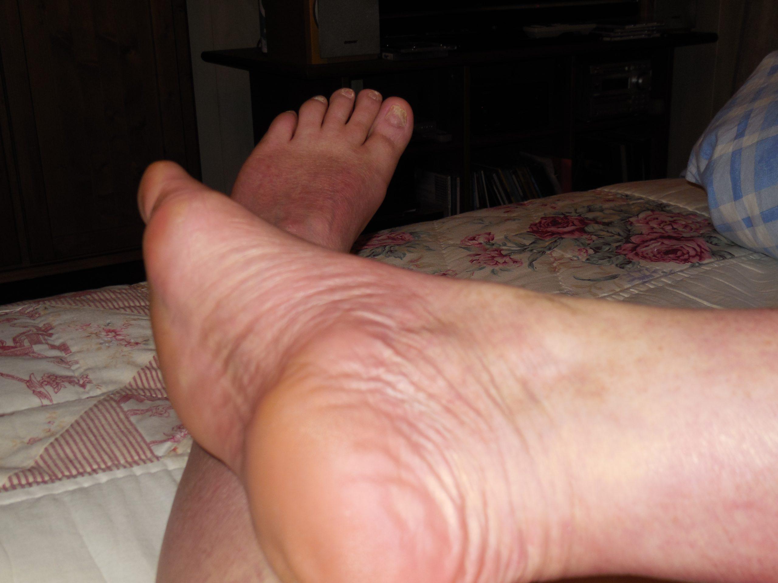 Image of Healed skin after Psoriasis