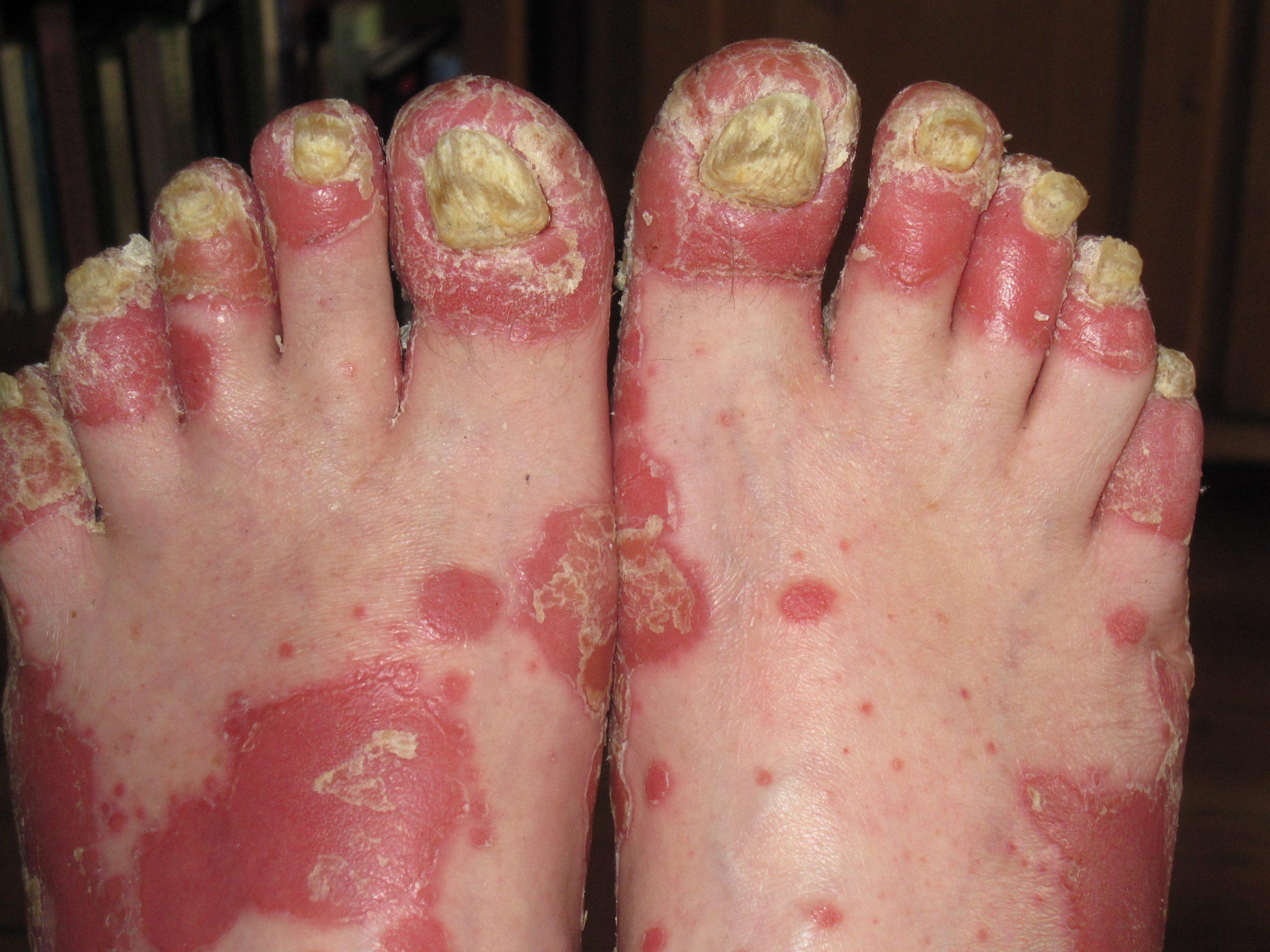 Image of Womens Psoriasis