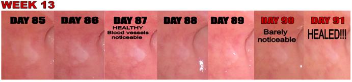 Development of HPV during Scalar Light Treatment
