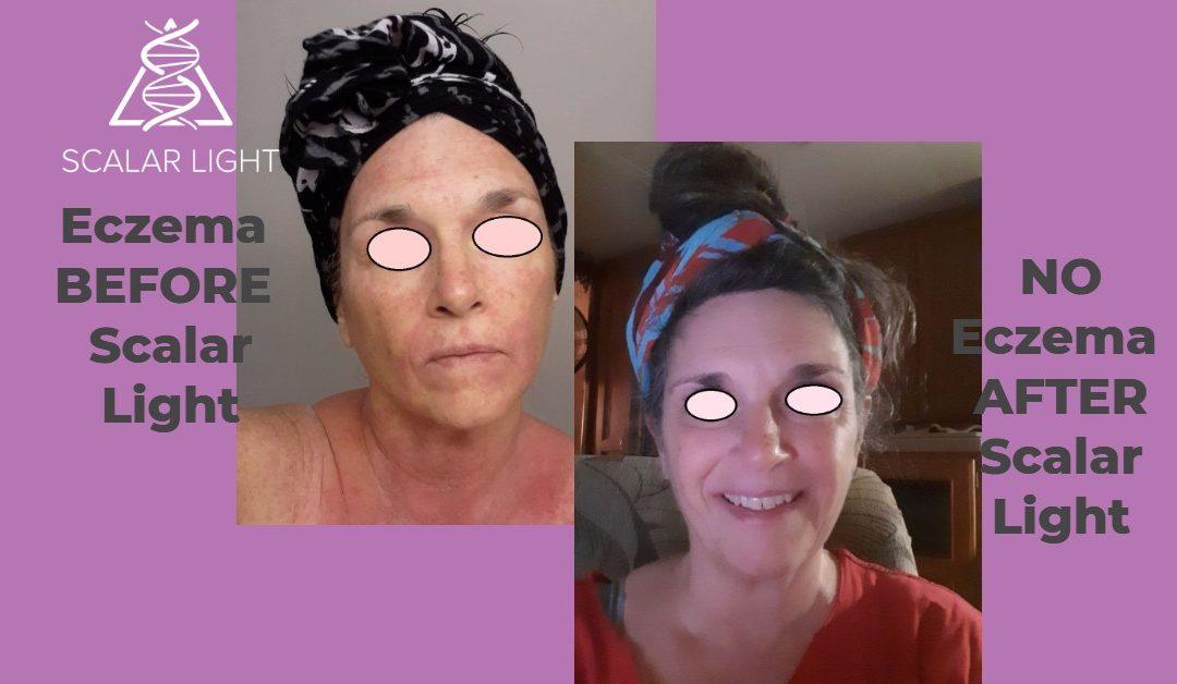 Scalar Light Brings Relief To Eczema